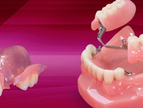 removable dentures wareham ma